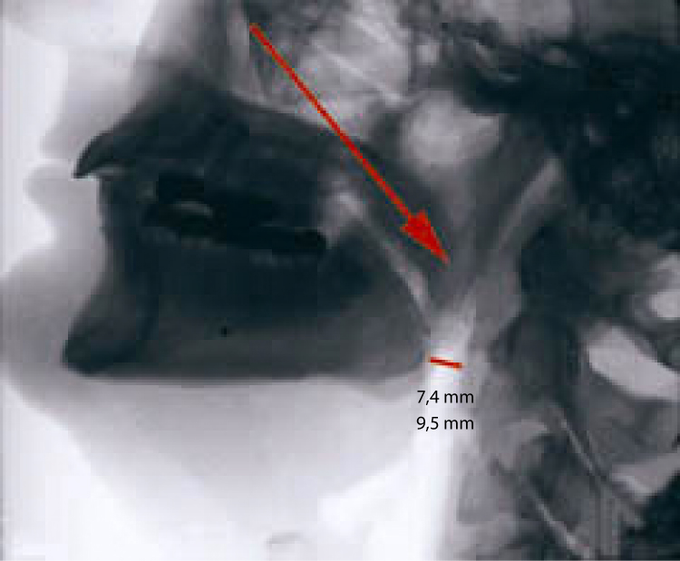 X-ray before placing SnorBan
